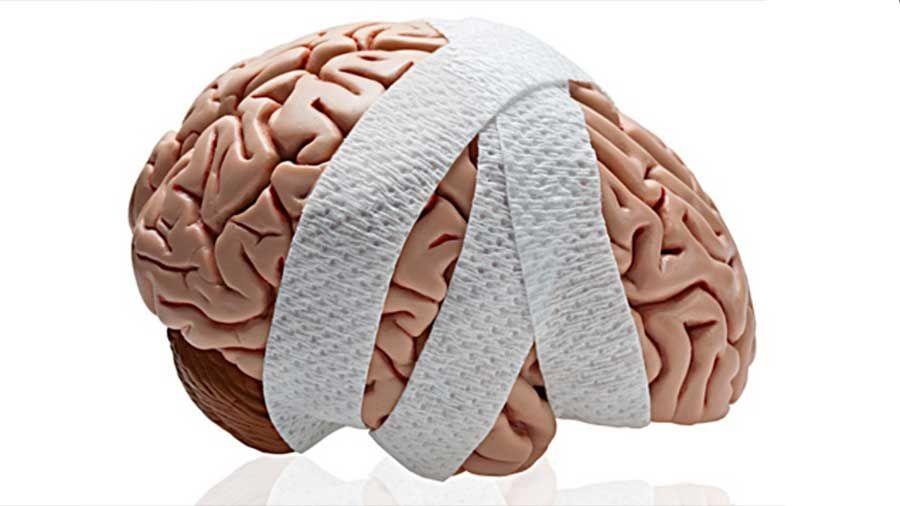Los Mejores Abogados en Español de Lesiones Cerebrales Para Mayor Compensación en Pasadena California